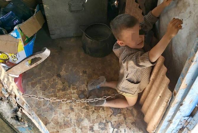 """Посаженного на цепь для """"перевоспитания"""" 6-летнего ребенка в семью не вернут  [фото]"""