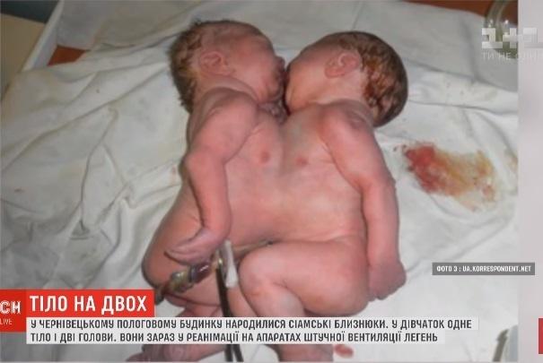 Сиамских близнецов пока что не будут переводить из реанимации [видео]